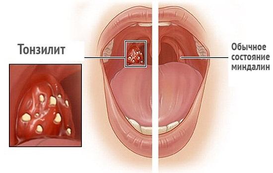 Миндалины и аденоиды - Страница 3 из 6 - Все о болезнях горла