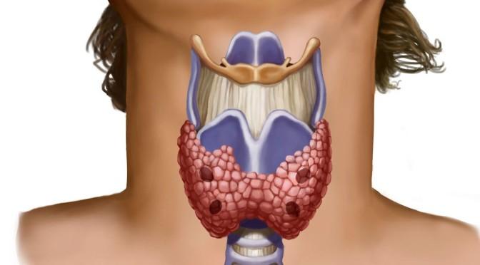 Щитовидная