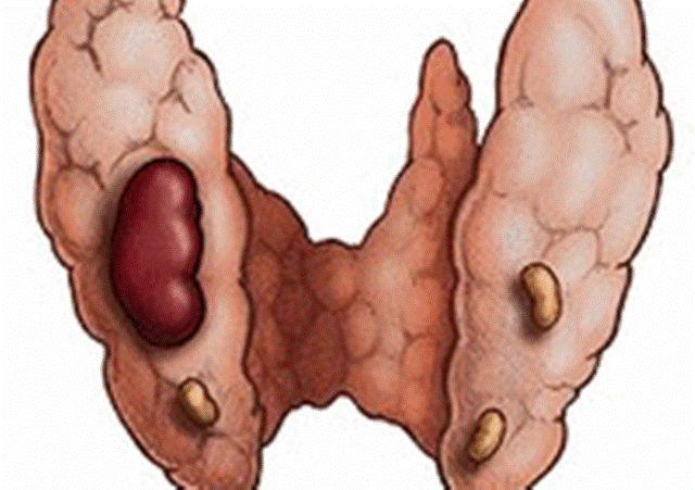 неприятный запах железа изо рта