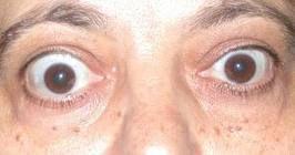 Симптомы Базедова болезни