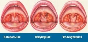 формы ангины