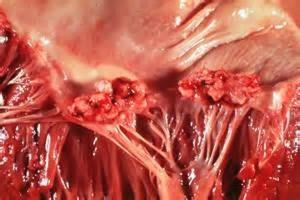 Ревматизм разрушает ткани сердца
