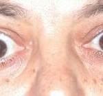 Базедова болезнь симптомы