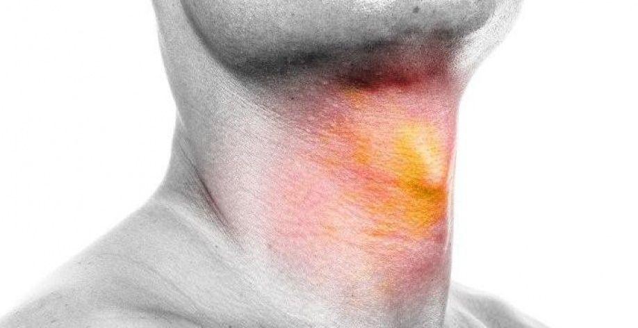 Папиллома в горле лечение народными средствами