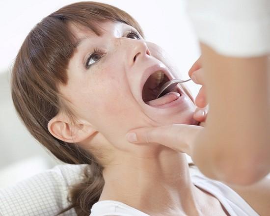 Во рту в горле на гландах и миндалинах белые гнойные комочки с неприятным запахом: что это